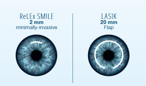 relex smile lasik surgery in mumbai